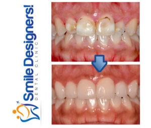 facette-dentaire--ref2