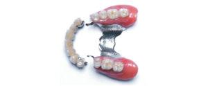 Stellite dentaire