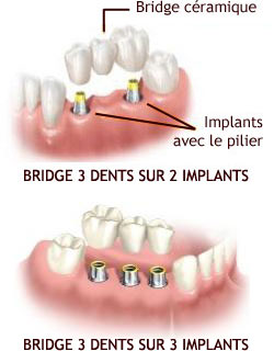 bridge-implants