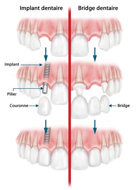 implant-bridge-3