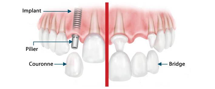 implant-bridge-4