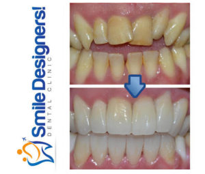 facette-dentaire--ref5